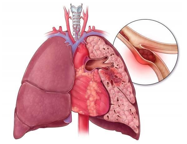 agciyer arteriyasinin trombu