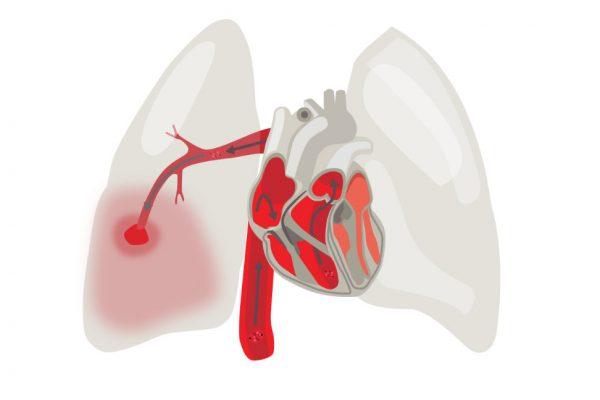 Ağciyər Arteriyasının Tromboembolizmi