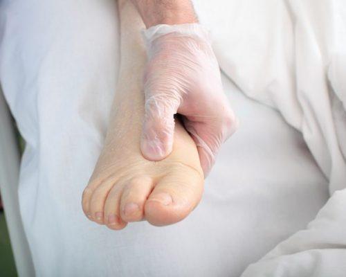 Ayaqların şişməsi